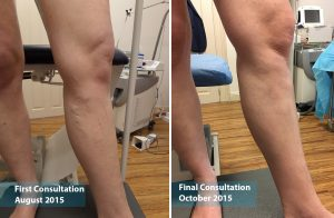 Ultrasound Guided Sclerotherapy — Karla
