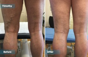 Timothy varicose vein treatment outcomes