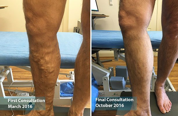 varicose vein treatment sydney