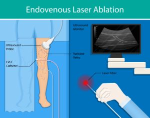 What's the Difference Between Endovenous Laser Ablation and Radiofrequency Ablation?