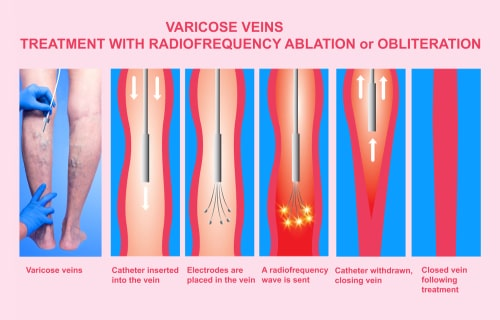 An illustration of a varicose veins treatment with radiofrequency ablation or obliteration at The Vein Institute. This is for the blog about