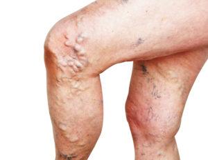 Builging varicose veins
