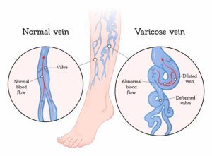 Varicose vein valves