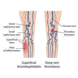 Superficial thrombophlebitis