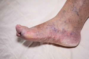 Chronic swelling from varicose veins