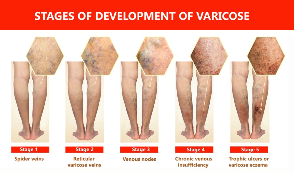 Prominent veins: What causes bulging veins?