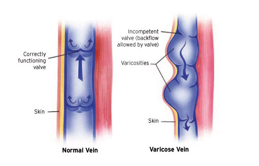 Diagram of veins. One vein is normal with no disease. The other has damaged vein valves causing varicose veins to appear.