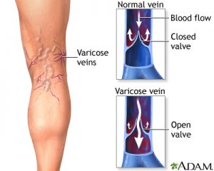 Image of leg with varicose veins including a diagram of a closed vein valve which causes varicose veins and open vein valves when veins are healthy.