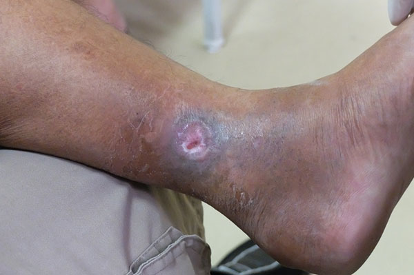 Venous Ulcers