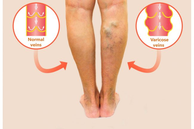 Image of legs, the left leg has normal functioning veins, the right has varicose veins which are visible on the skin