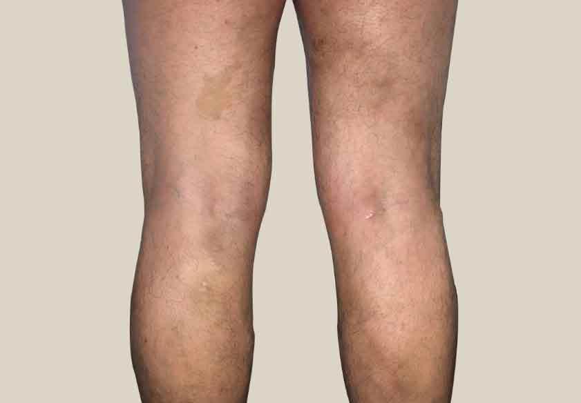 varicose veins After