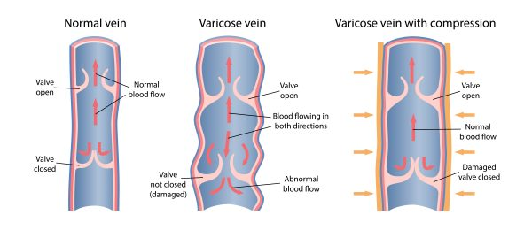Diagram of a normal functioning vein with healthy vein valves, a varicose vein with damaged vein valves and then an image of how the varicose vein looks when compressed by wearing medical-grade compression stockings.