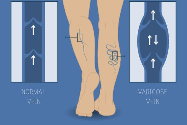 when to treat varicose veins